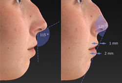 Detailed Facial Diagrams and Measurements