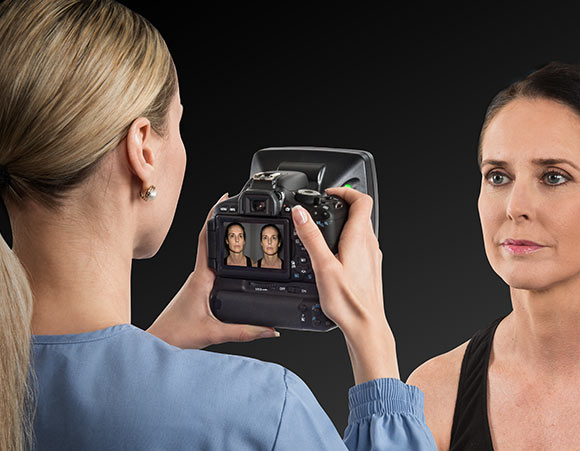VECTRA H1 handheld #D imaging